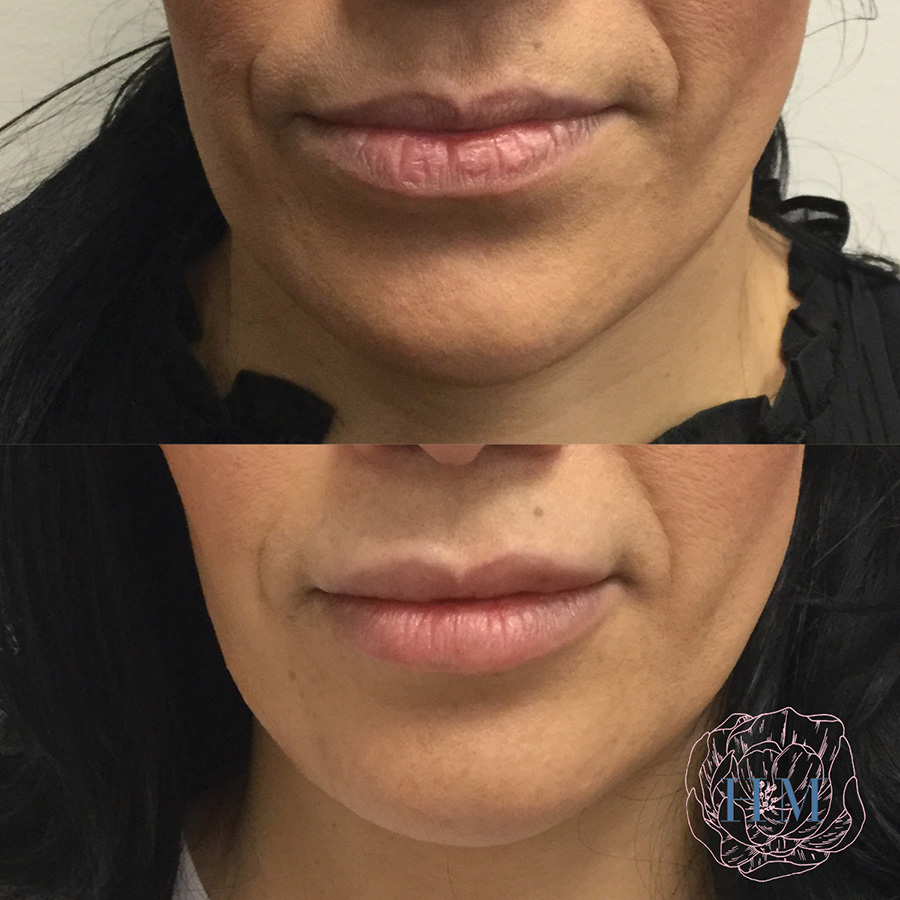 Lip Enhancement Service